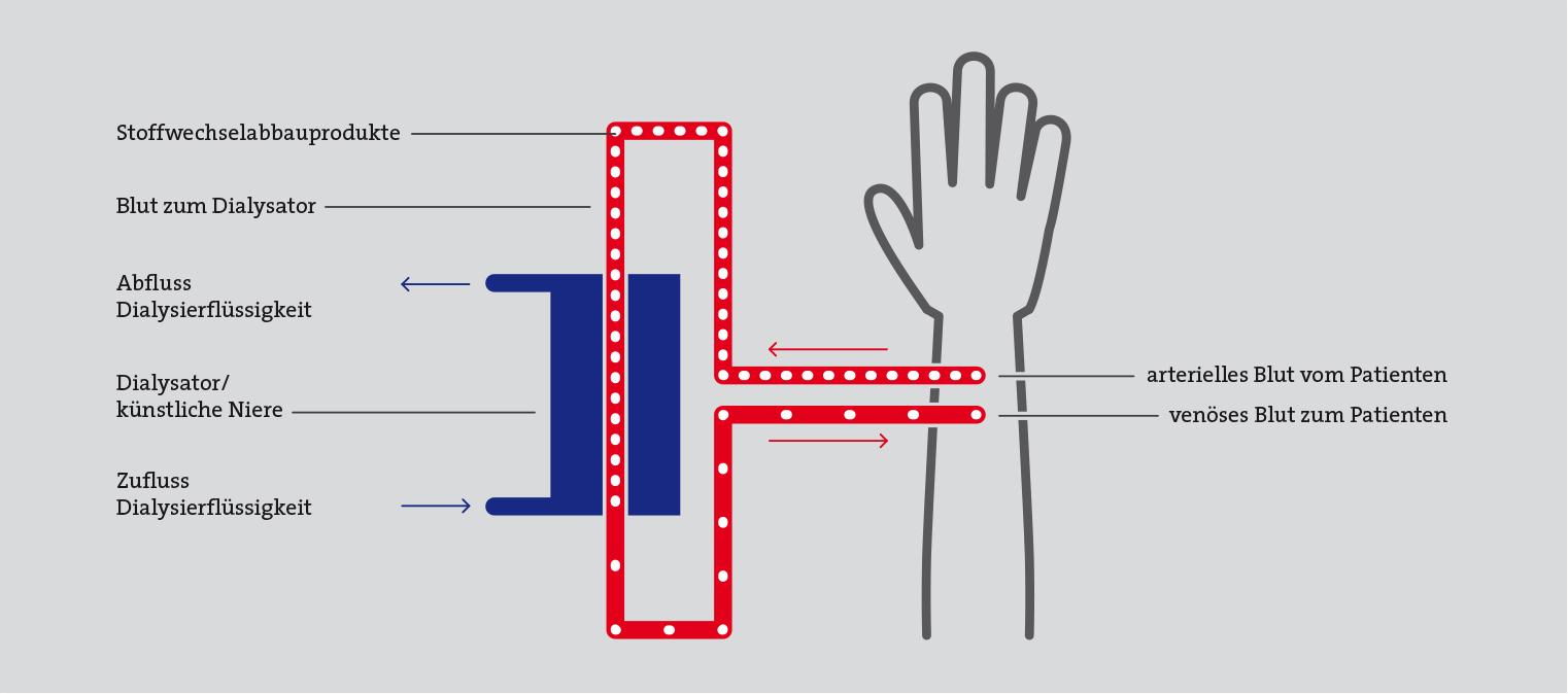 Illustration-Dialyse-Haemo-low-v2
